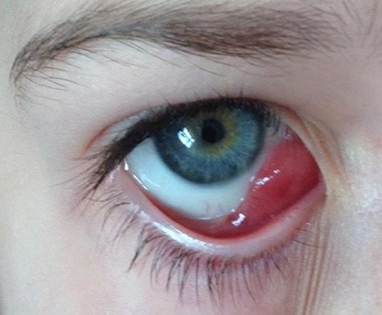 儿童眼角红肿牙龈出血 竟是白血病