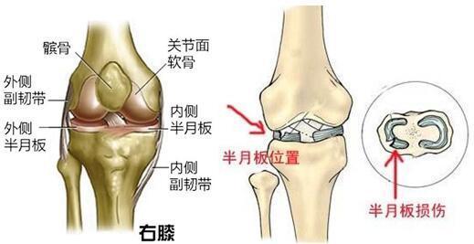 跑步半月板损伤原因 处理方法和预防措施