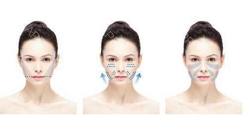 面部线雕术能维持多久,如果线雕美容失败怎么办图片