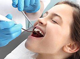 洗牙禁忌和注意事项