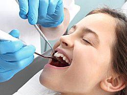 拔牙前的注意事项与禁忌症