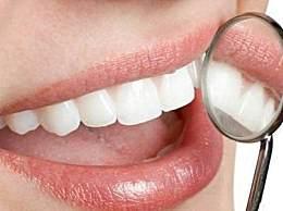 牙齿发黄不敢笑,变白小窍门真的管用吗