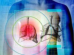 胸膜炎严重吗