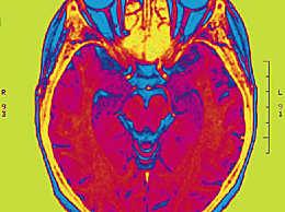 大脑储存记忆?不 因为它本身就是记忆