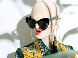 因为遗传病外表丑陋甚至恐怖 但却在模特界混得风生水起