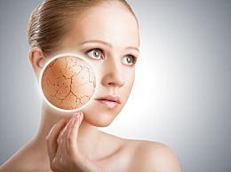秋季皮肤干燥 学会保养皮肤以恢复光泽