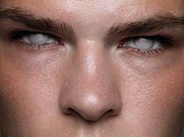 世界上罕见的银眼人是一个特殊的群体(盲人)